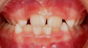 Dental Midlines not matched child