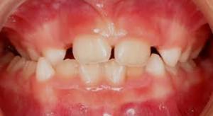 Dental Midlines not matched child