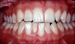 Dental_Midlines_not_matched